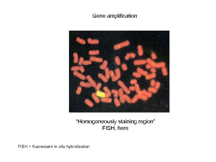 "Gene amplification ""Homogeneously staining region"" FISH, here FISH = fluorescent in situ hybridization"