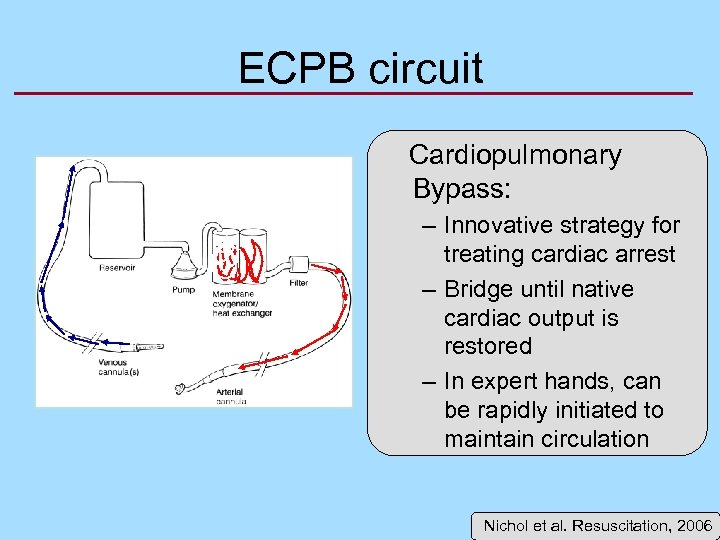 ECPB circuit Cardiopulmonary Bypass: – Innovative strategy for treating cardiac arrest – Bridge until