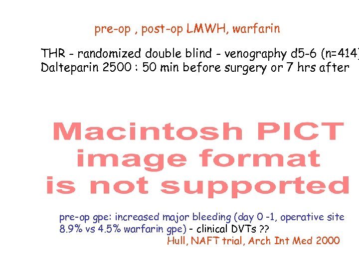 pre-op , post-op LMWH, warfarin THR - randomized double blind - venography d 5