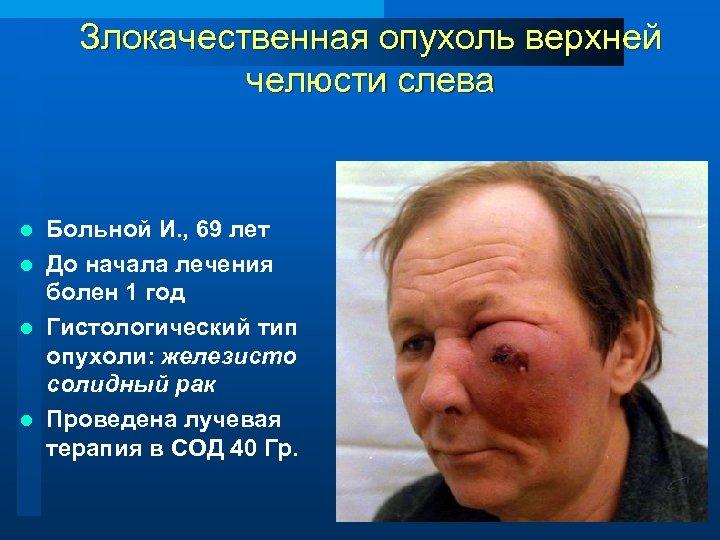 Злокачественная опухоль верхней челюсти слева Больной И. , 69 лет l До начала лечения