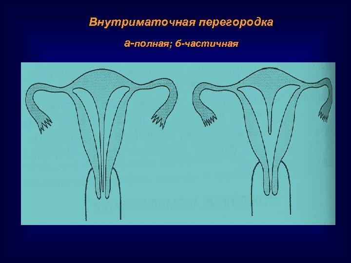 Внутриматочная перегородка а-полная; б-частичная