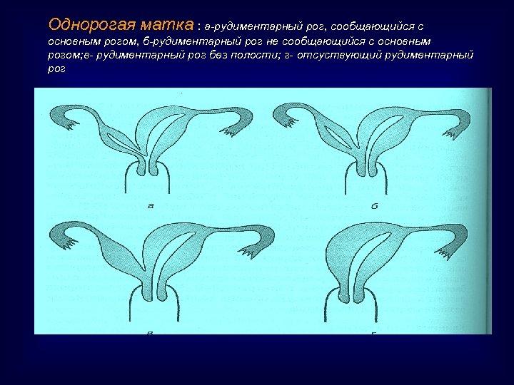 Однорогая матка : а-рудиментарный рог, сообщающийся с основным рогом, б-рудиментарный рог не сообщающийся с