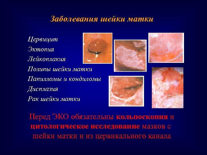 Заболевания шейки матки Цервицит Эктопия Лейкоплакия Полипы шейки матки Папилломы и кондиломы Дисплазия Рак