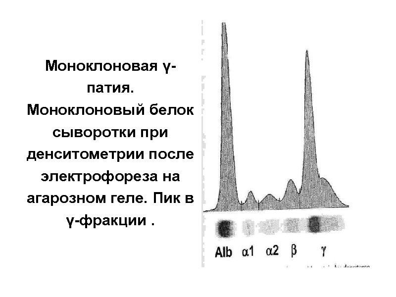 Моноклоновая үпатия. Моноклоновый белок сыворотки при денситометрии после электрофореза на агарозном геле. Пик в