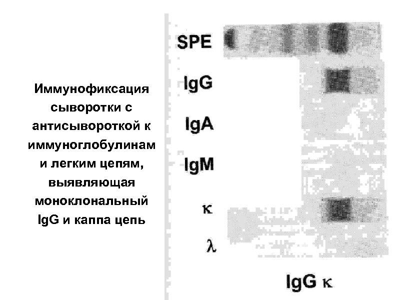 Иммунофиксация сыворотки с антисывороткой к иммуноглобулинам и легким цепям, выявляющая моноклональный Ig. G и