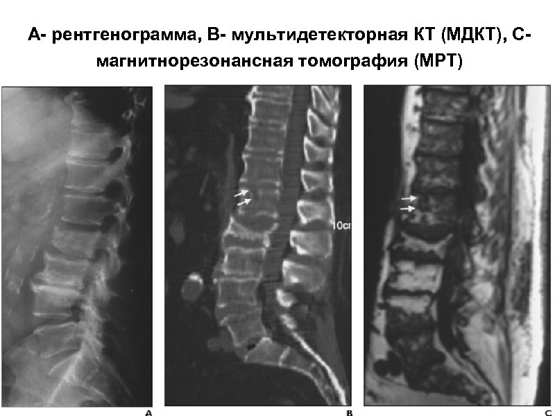 А- рентгенограмма, В- мультидетекторная КТ (МДКТ), Смагнитнорезонансная томография (МРТ)