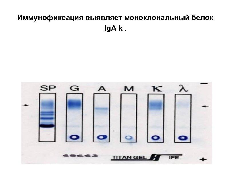 Иммунофиксация выявляет моноклональный белок Ig. A k.