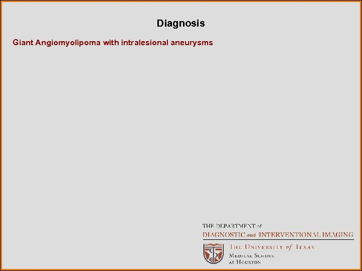 Diagnosis Giant Angiomyolipoma with intralesional aneurysms