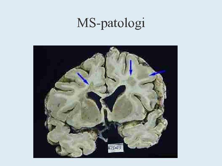 MS-patologi