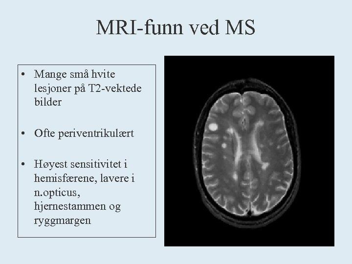 MRI-funn ved MS • Mange små hvite lesjoner på T 2 -vektede bilder •