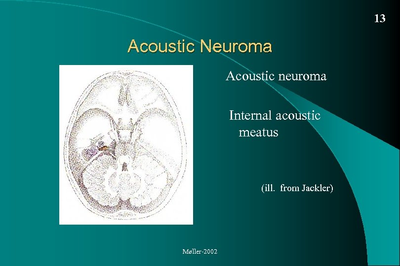 13 Acoustic Neuroma Acoustic neuroma Internal acoustic meatus (ill. from Jackler) Møller-2002