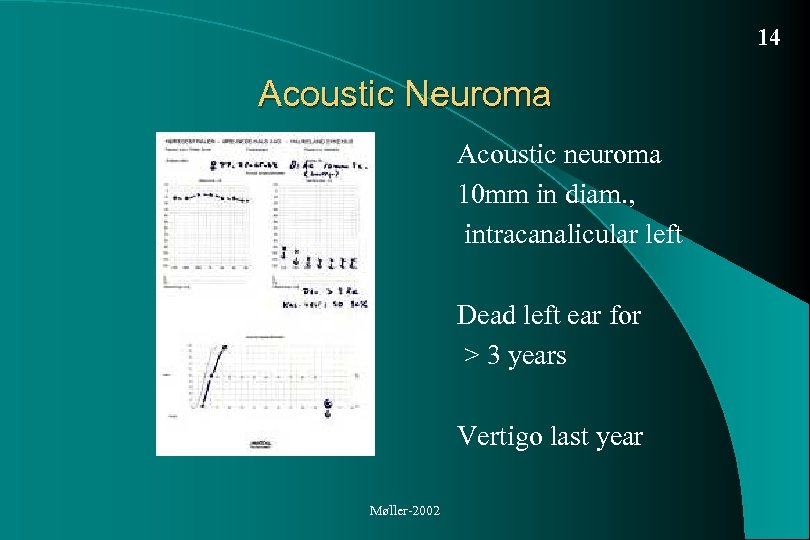 14 Acoustic Neuroma Acoustic neuroma 10 mm in diam. , intracanalicular left Dead left