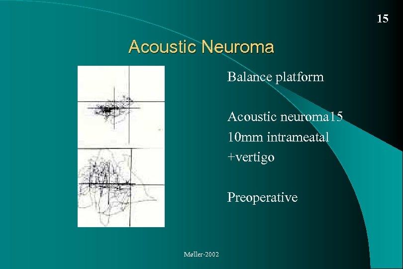 15 Acoustic Neuroma Balance platform Acoustic neuroma 15 10 mm intrameatal +vertigo Preoperative Møller-2002