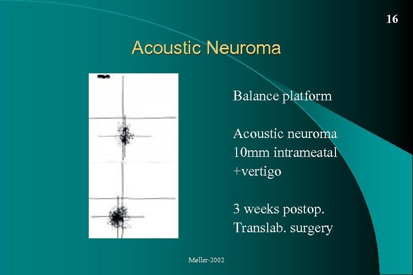 16 Acoustic Neuroma Balance platform Acoustic neuroma 10 mm intrameatal +vertigo 3 weeks postop.