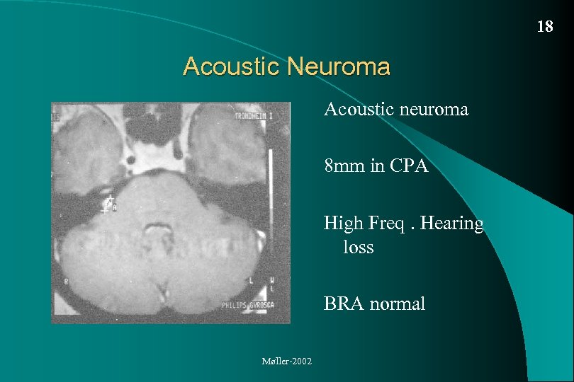 18 Acoustic Neuroma Acoustic neuroma 8 mm in CPA High Freq. Hearing loss BRA