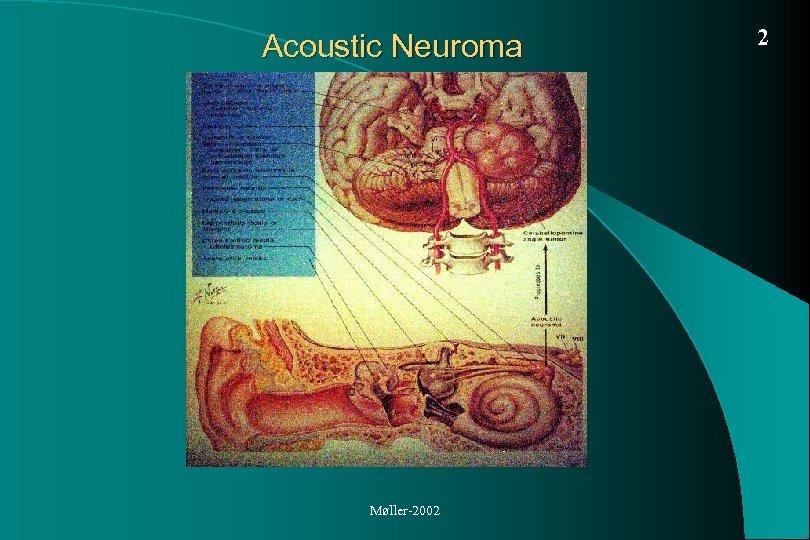 Acoustic Neuroma Møller-2002 2