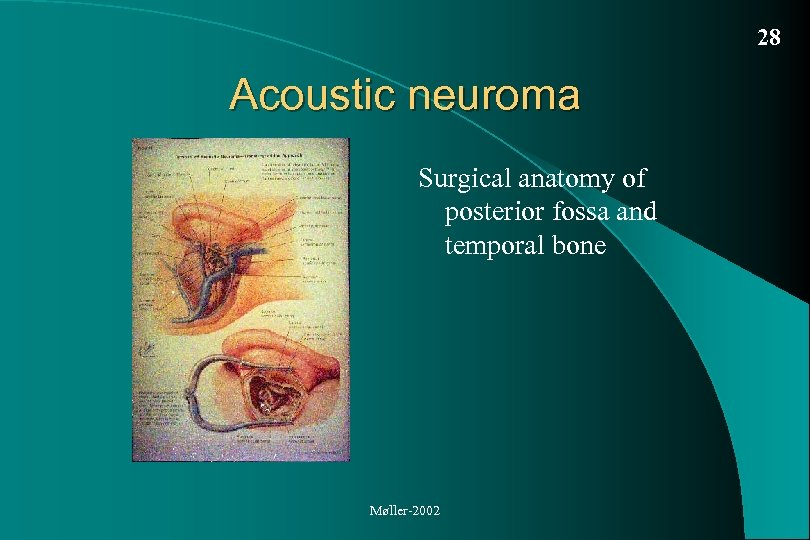 28 Acoustic neuroma Surgical anatomy of posterior fossa and temporal bone Møller-2002