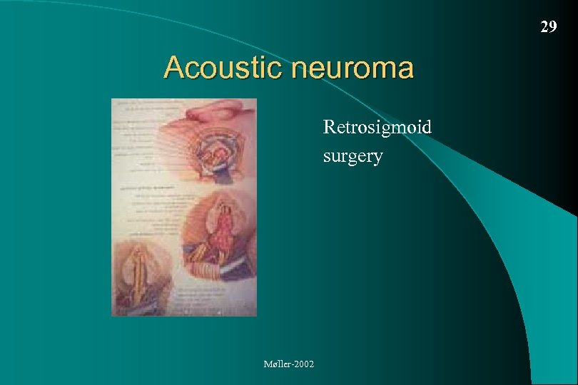 29 Acoustic neuroma Retrosigmoid surgery Møller-2002