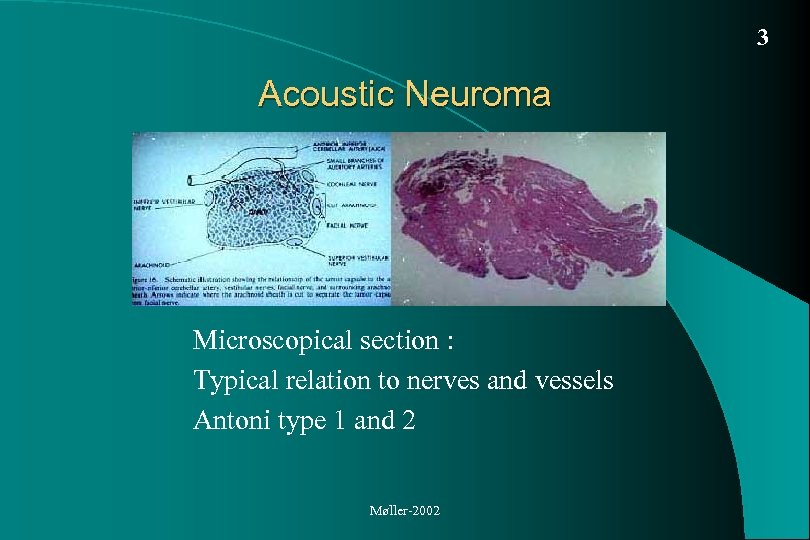 3 Acoustic Neuroma Microscopical section : Typical relation to nerves and vessels Antoni type