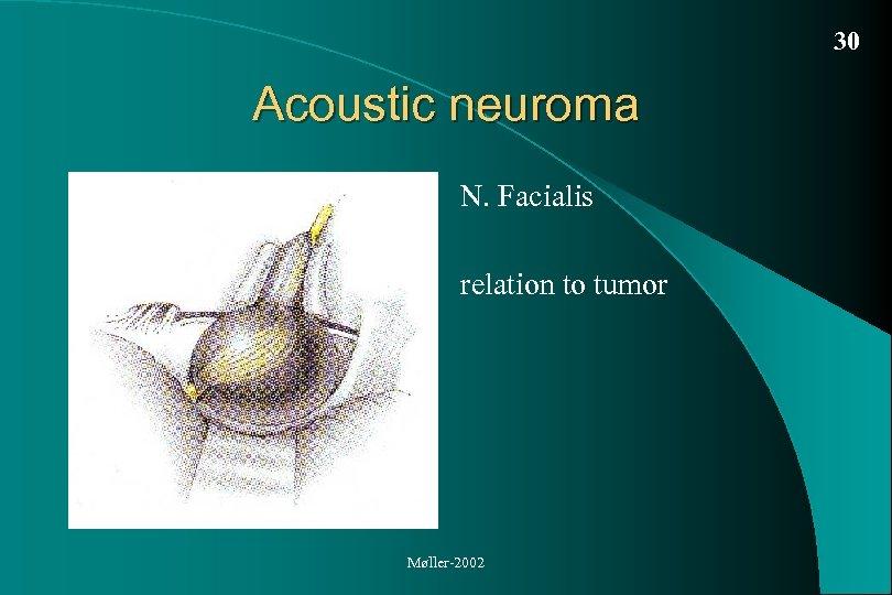 30 Acoustic neuroma N. Facialis relation to tumor Møller-2002