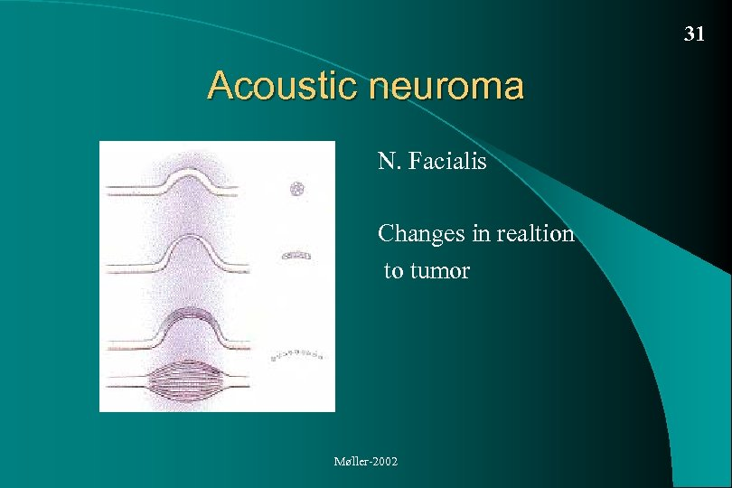 31 Acoustic neuroma N. Facialis Changes in realtion to tumor Møller-2002