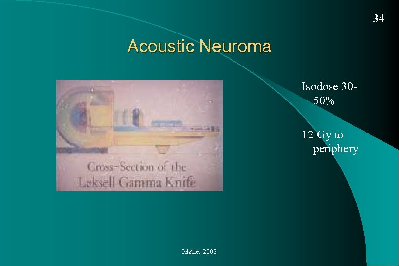 34 Acoustic Neuroma Isodose 3050% 12 Gy to periphery Møller-2002