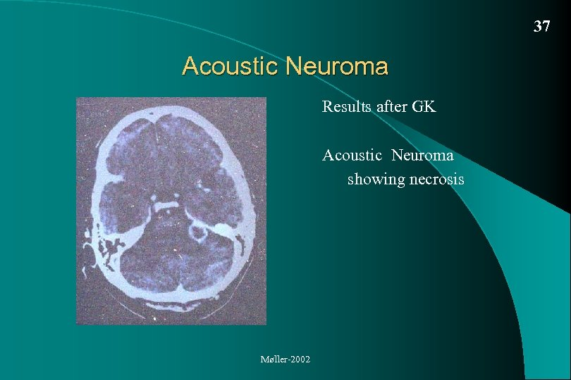37 Acoustic Neuroma Results after GK Acoustic Neuroma showing necrosis Møller-2002