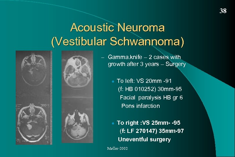 38 Acoustic Neuroma (Vestibular Schwannoma) – Gamma. knife – 2 cases with growth after