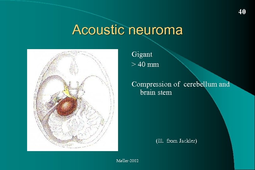 40 Acoustic neuroma Gigant > 40 mm Compression of cerebellum and brain stem (ill.