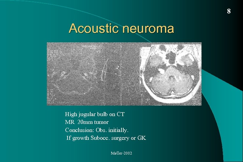 8 Acoustic neuroma High jugular bulb on CT MR 20 mm tumor Conclusion: Obs.