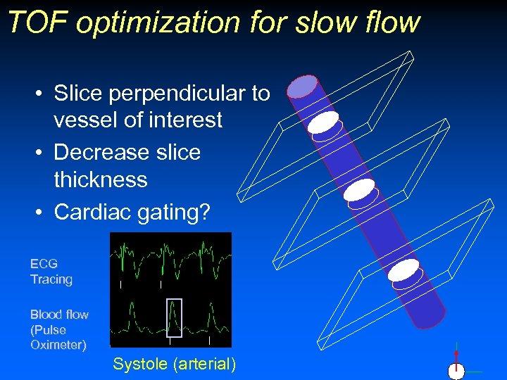 TOF optimization for slow flow • Slice perpendicular to vessel of interest • Decrease