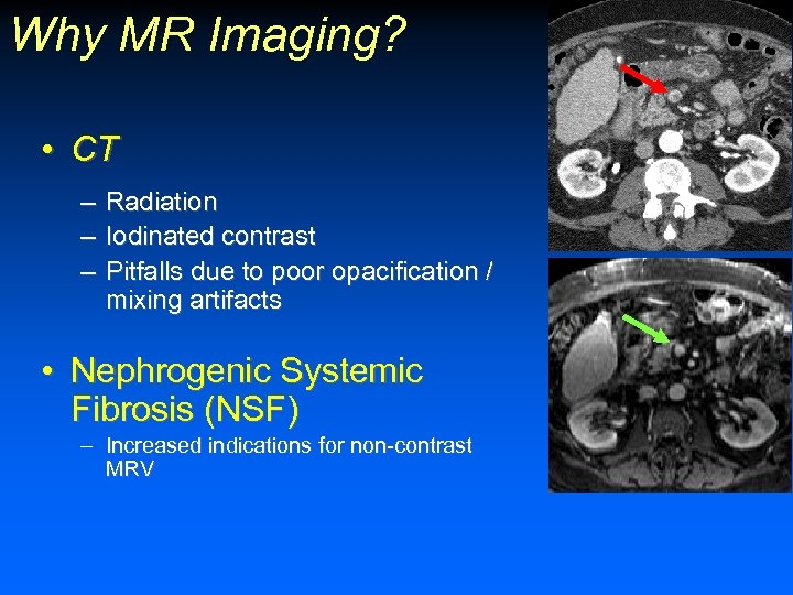 Why MR Imaging? • CT – Radiation – Iodinated contrast – Pitfalls due to