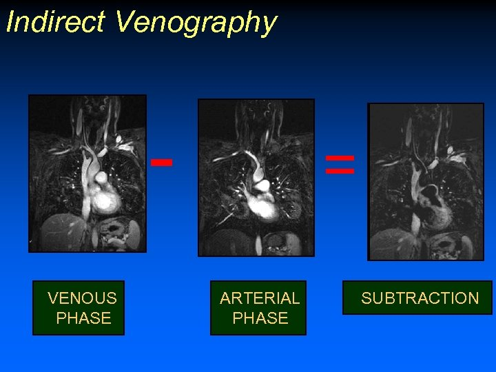 Indirect Venography VENOUS PHASE = ARTERIAL PHASE SUBTRACTION