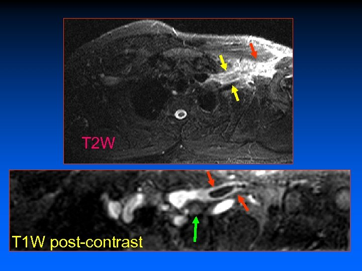 T 2 W T 1 W post-contrast
