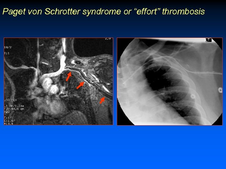 """Paget von Schrotter syndrome or """"effort"""" thrombosis"""