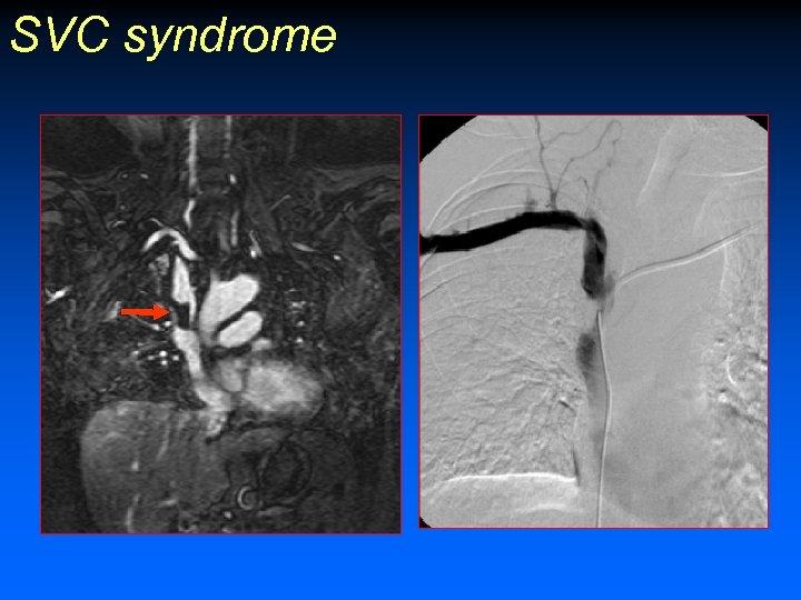 SVC syndrome