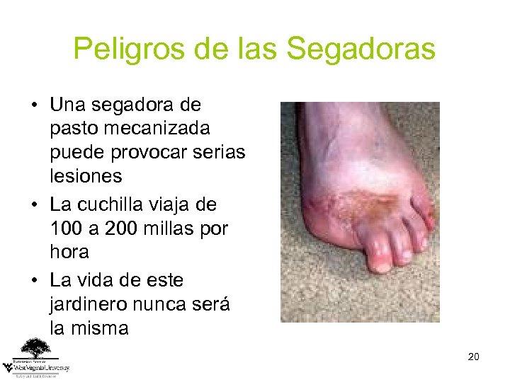 Peligros de las Segadoras • Una segadora de pasto mecanizada puede provocar serias lesiones