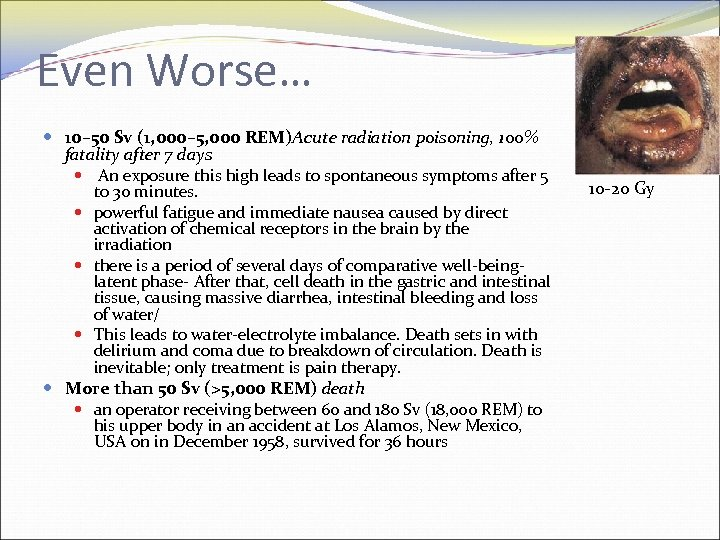 Even Worse… 10– 50 Sv (1, 000– 5, 000 REM)Acute radiation poisoning, 100% fatality