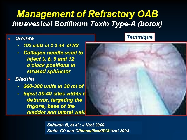 Management of Refractory OAB Intravesical Botilinum Toxin Type-A (botox) · Technique Urethra • 100