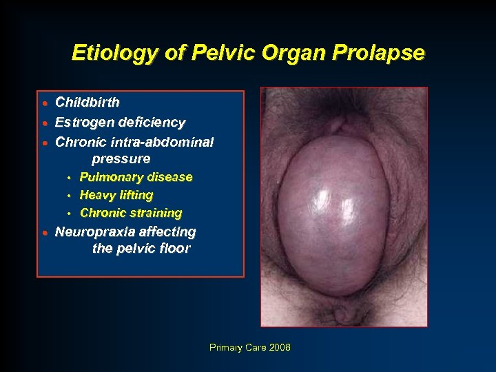 Etiology of Pelvic Organ Prolapse Childbirth · Estrogen deficiency · Chronic intra-abdominal pressure ·