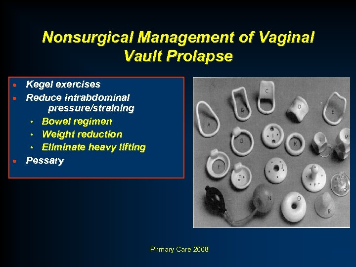 Nonsurgical Management of Vaginal Vault Prolapse Kegel exercises · Reduce intrabdominal pressure/straining • Bowel