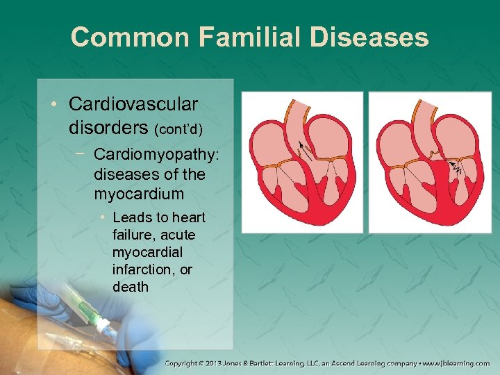 cardiovascular disease annotated bibliography Steroids and cardiovascular diseases as well as other cardiovascular related health problems the author states that these illnesses are more prevalent among people that use.