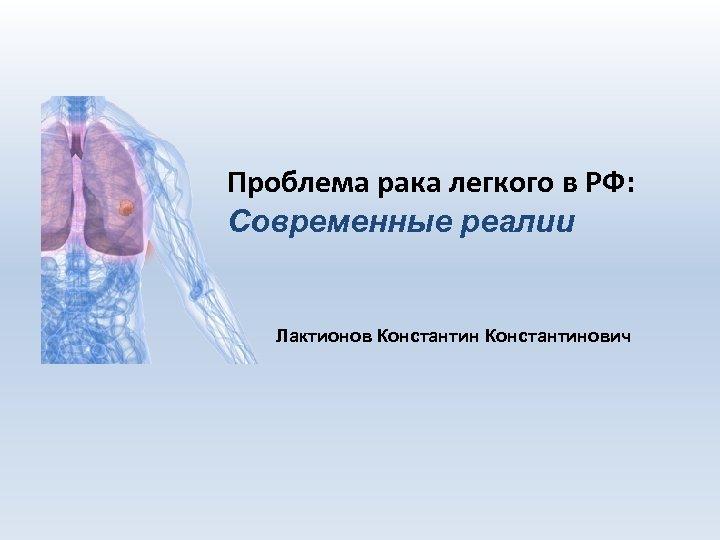 Проблема рака легкого в РФ: Современные реалии Лактионов Константинович