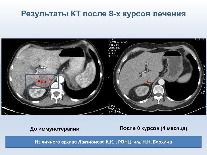 Результаты КТ после 8 -х курсов лечения 5 см До иммунотерапии После 8 курсов
