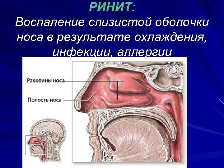 РИНИТ: Воспаление слизистой оболочки носа в результате охлаждения, инфекции, аллергии