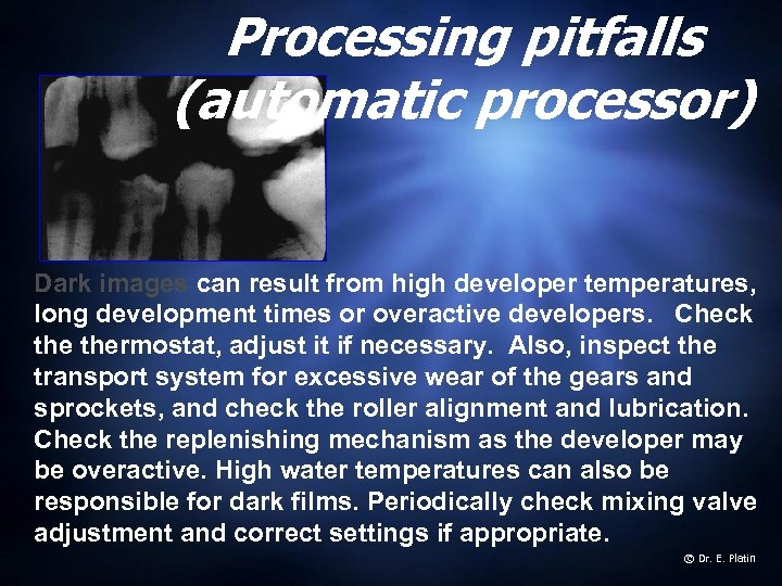 Processing pitfalls (automatic processor) Dark images can result from high developer temperatures, long development