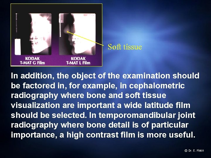 Soft tissue In addition, the object of the examination should be factored in, for