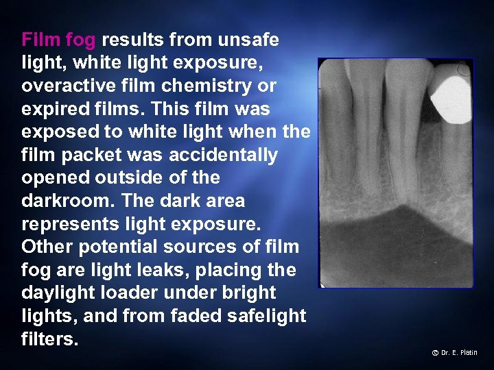 Film fog results from unsafe light, white light exposure, overactive film chemistry or expired