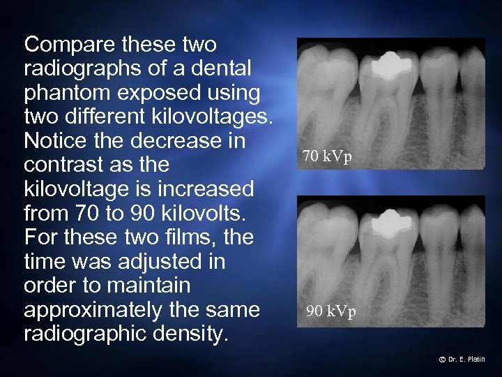 Compare these two radiographs of a dental phantom exposed using two different kilovoltages. Notice