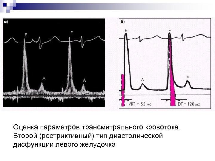 Оценка параметров трансмитрального кровотока. Второй (рестриктивный) тип диастолической дисфункции левого желудочка